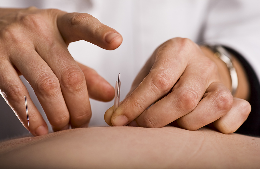 Acupuncture Services, BodE Work, Maui